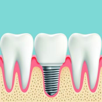 Lost a Tooth? Dental Implants to the Rescue!