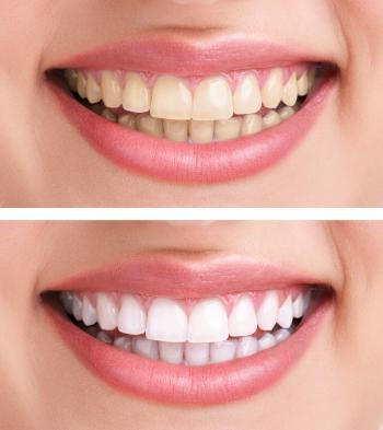All About Tooth Whitening by Dr. Gil Garalnick