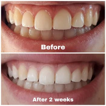 Selling Whitening toothpastes that actually work!!