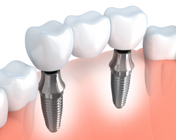 The All-On-4-Implant Treatment Concept by Dr. Gil Garalnick