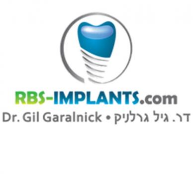 RBS IMPLANTS - DR. GIL GARALNICK